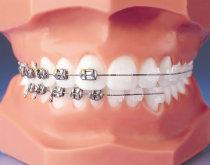 Feste Zahnspange / Multiband