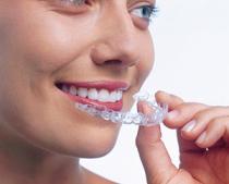 Invisalign - Schiene zur unsichtbaren Zahnkorrektur